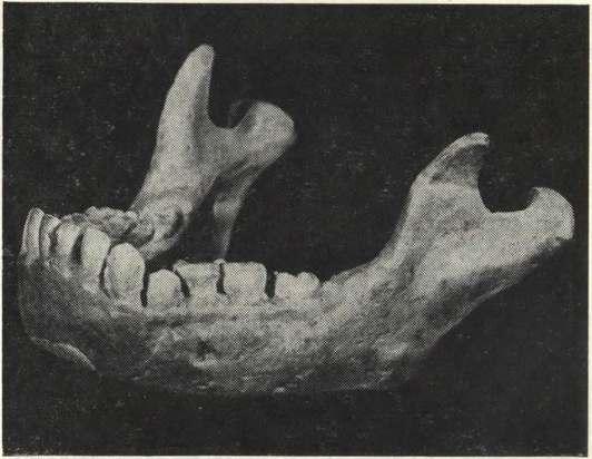 Реконструкция нижней челюсти неандертальца со стоянки Заскальной VI